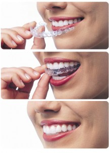 straighten teeth with invisible braces Palm Beach Gardens dentist West Palm Beach and Palm Beach Gardens