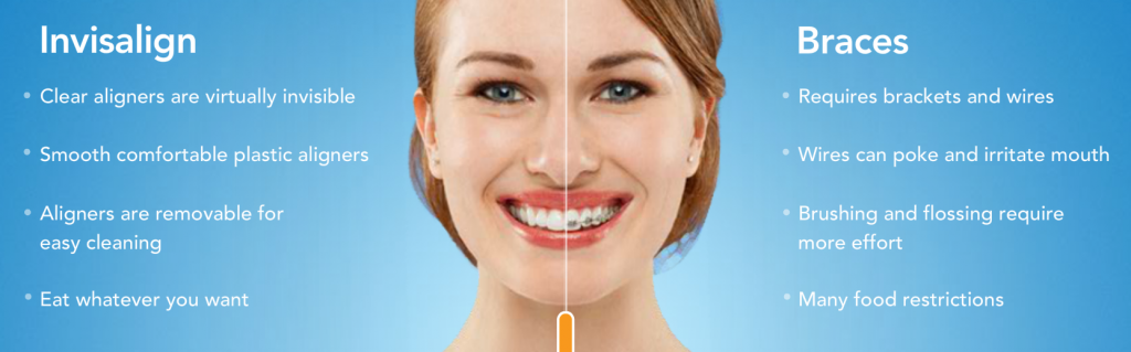 get beautiful teeth with Invisalign clear braces in West Palm Beach and Palm Beach Gardens