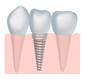dental implants dentist West Palm Beach and Palm Beach Gardens