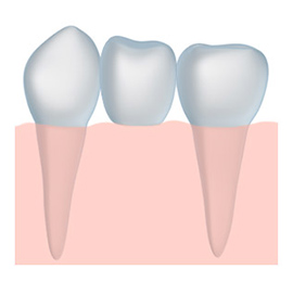 Beautiful tooth crown in Palm Beach Gardens