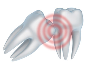 Stop the Toothache in West Palm Beach and Palm Beach Gardens